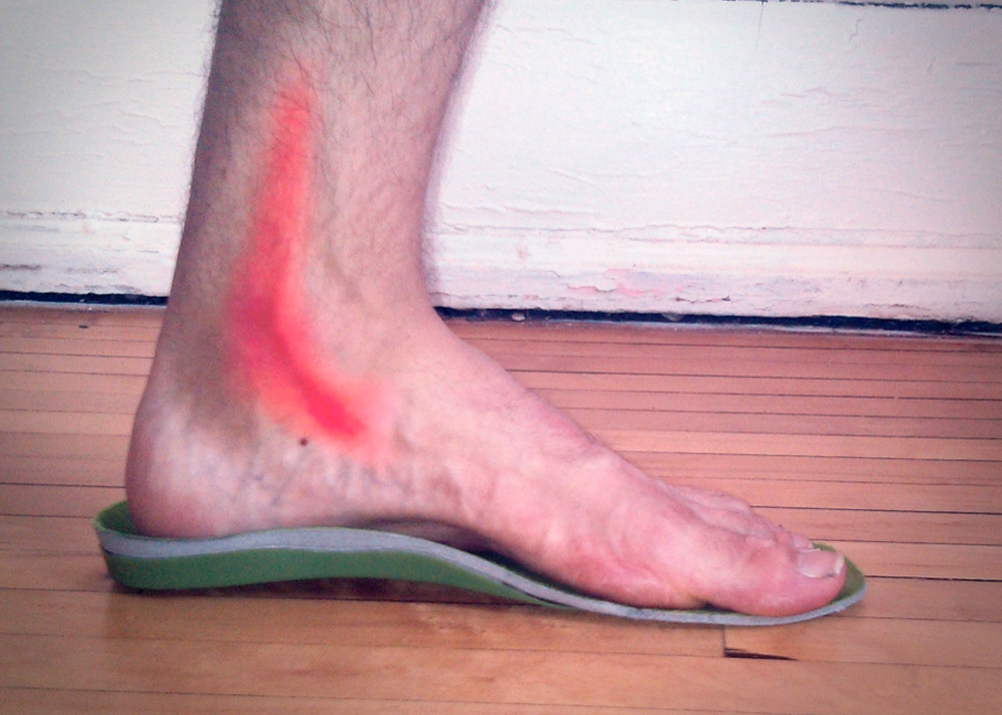 http://clinicadelpieembajadores.com/wp-content/uploads/2017/01/tendontibial.jpg